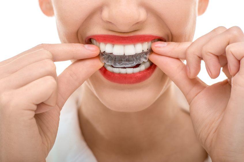 Invisalign, la revolución de la ortodoncia transparente - PCM Clínica Dental en Córdoba