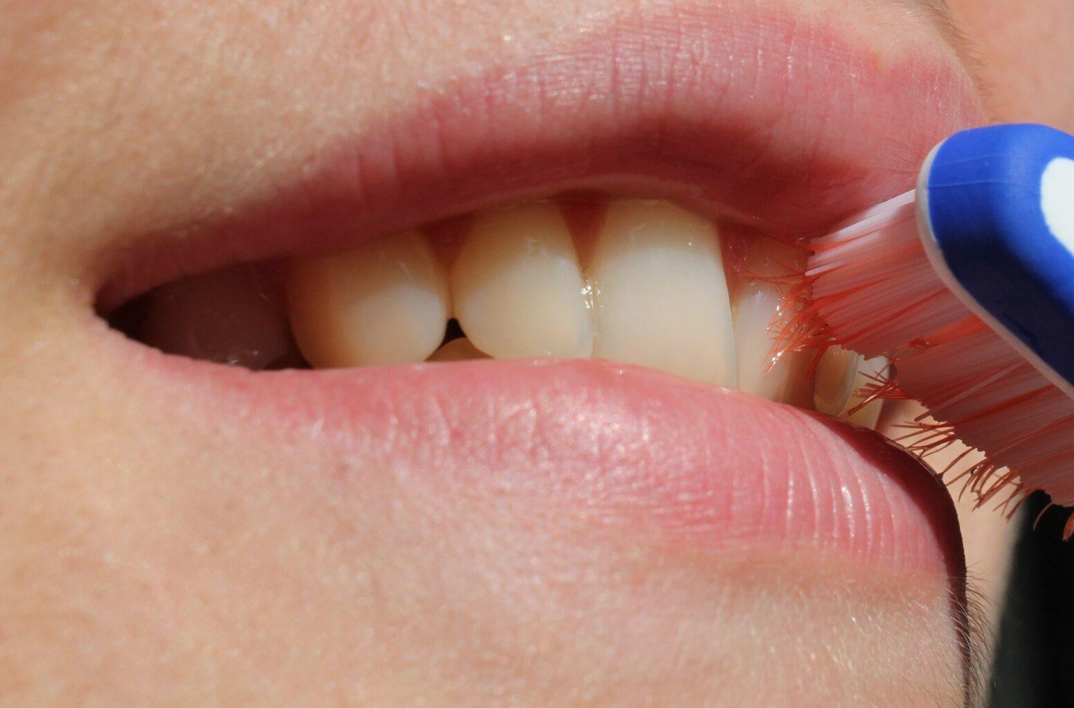 10 mitos sobre los dientes