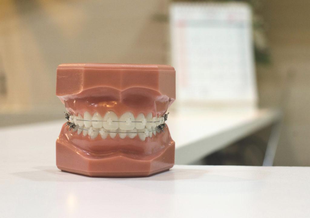 Tipos de ortodoncia en Córdoba - Clínica Dental PCM