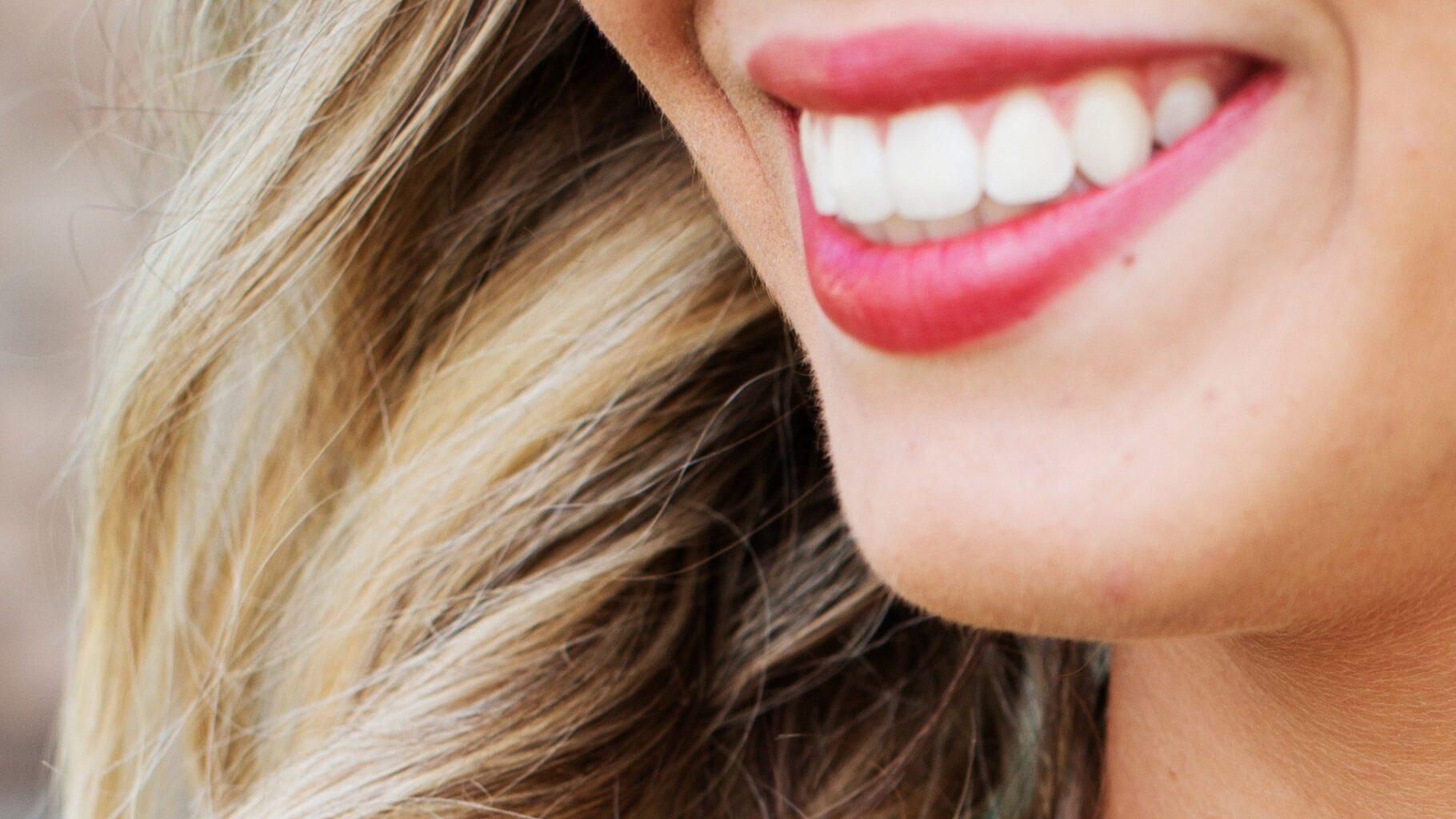 ¿Cómo se hace un blanqueamiento dental?