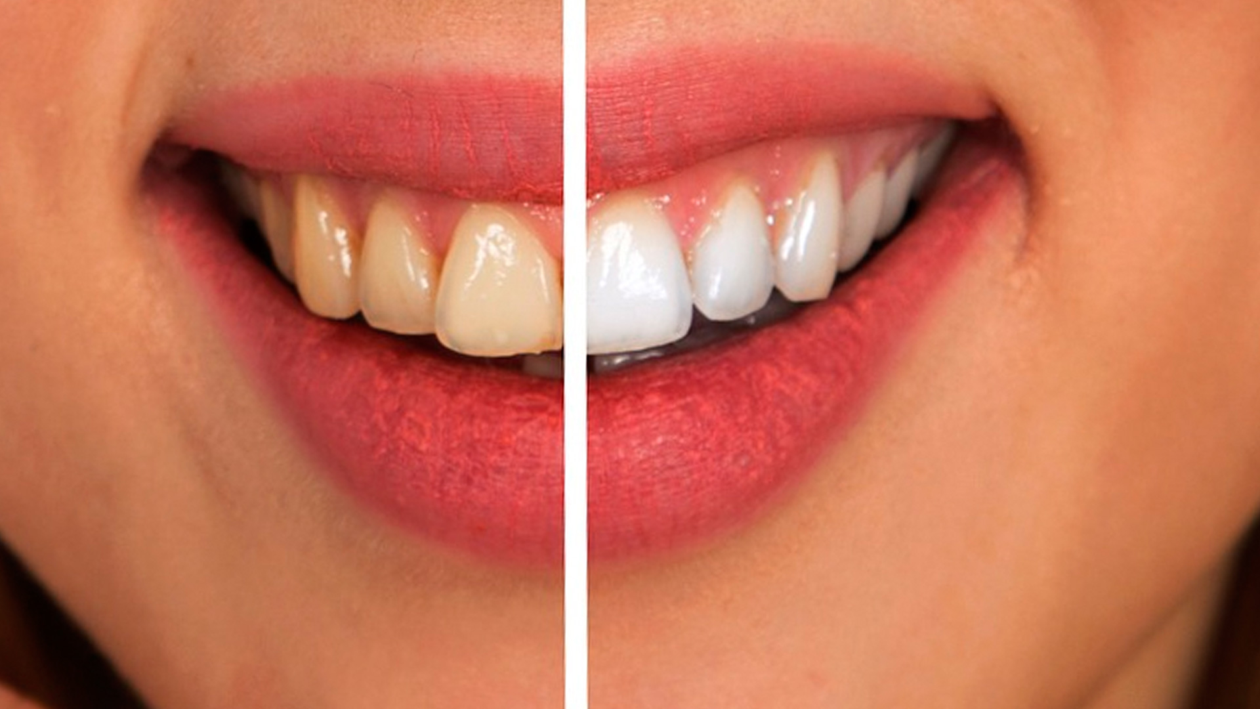 Cuidado con los remedios caseros de blanqueamiento dental