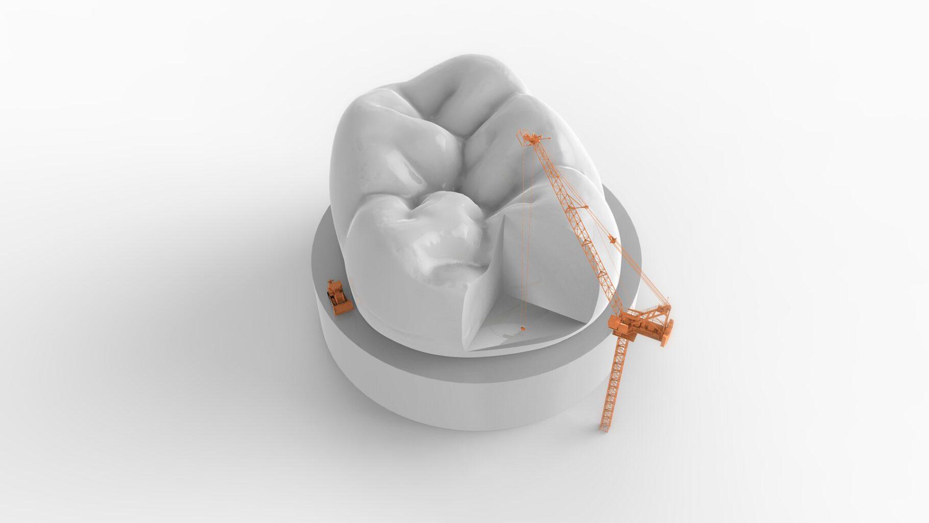 ¿Reparar o extraer piezas dentales?