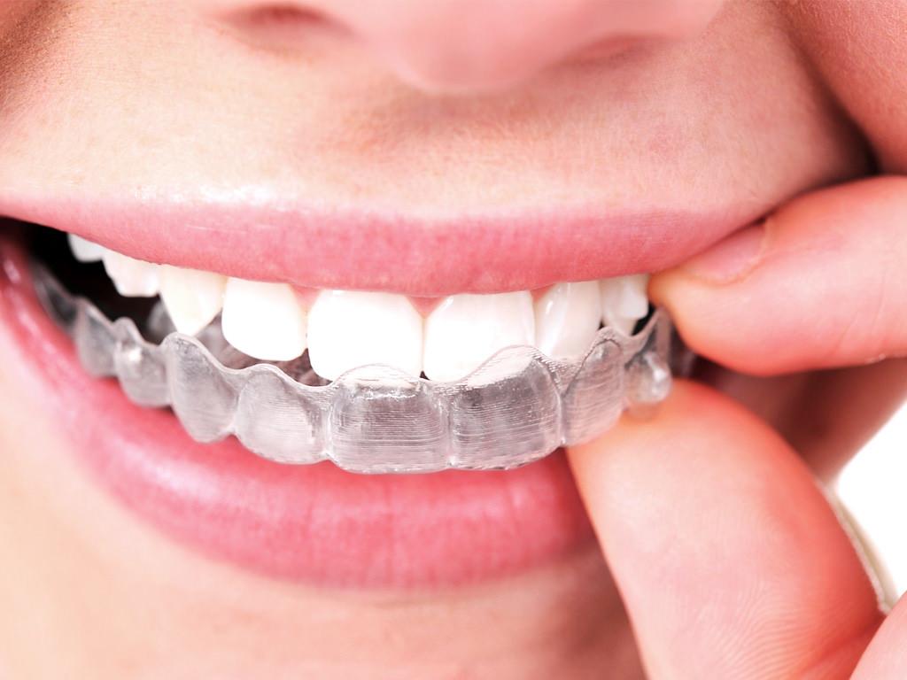 El día a día con ortodoncia transparente - PCM Clínica Dental en Córdoba