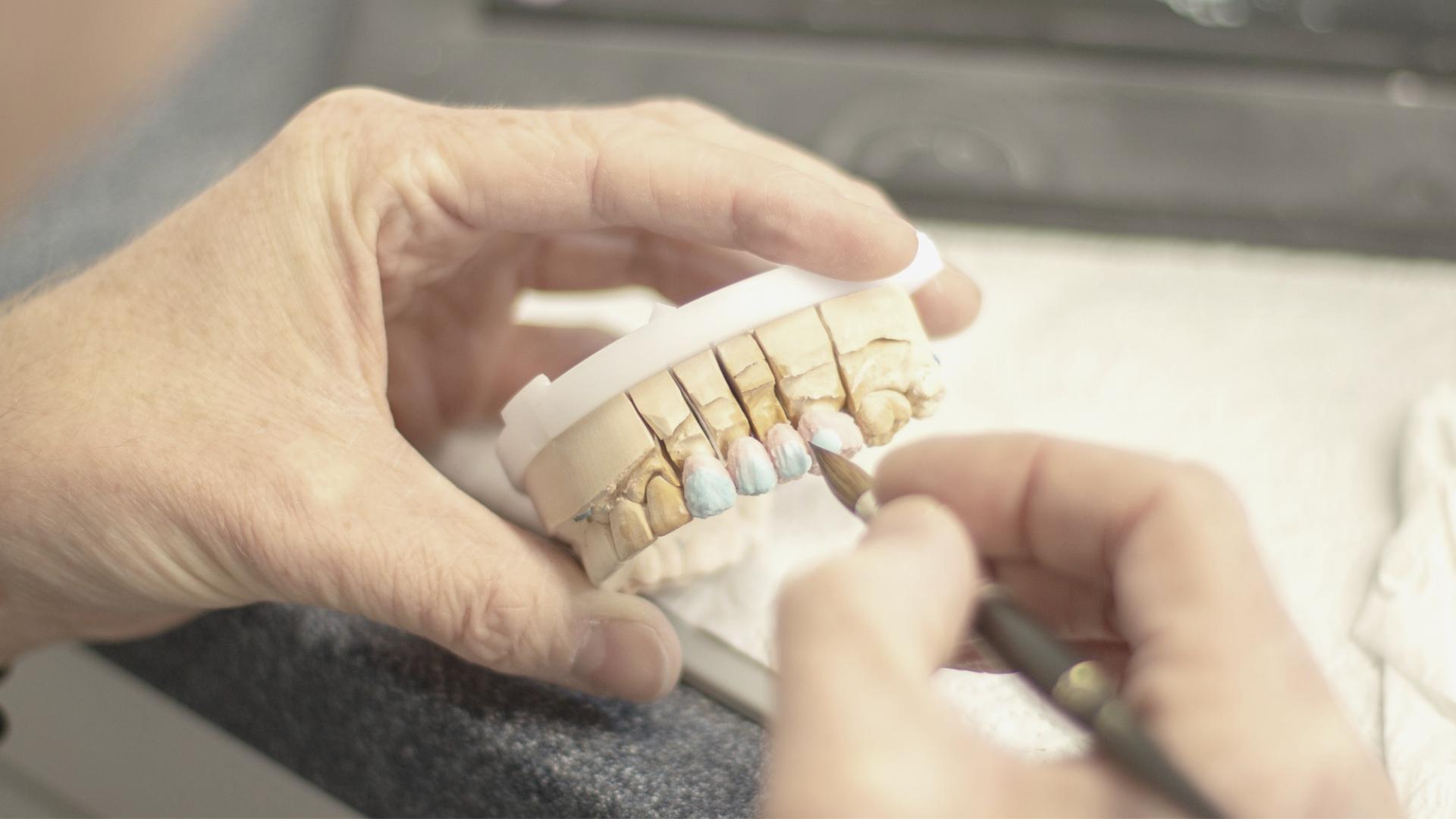 ¿Necesitas una reconstrucción dental?