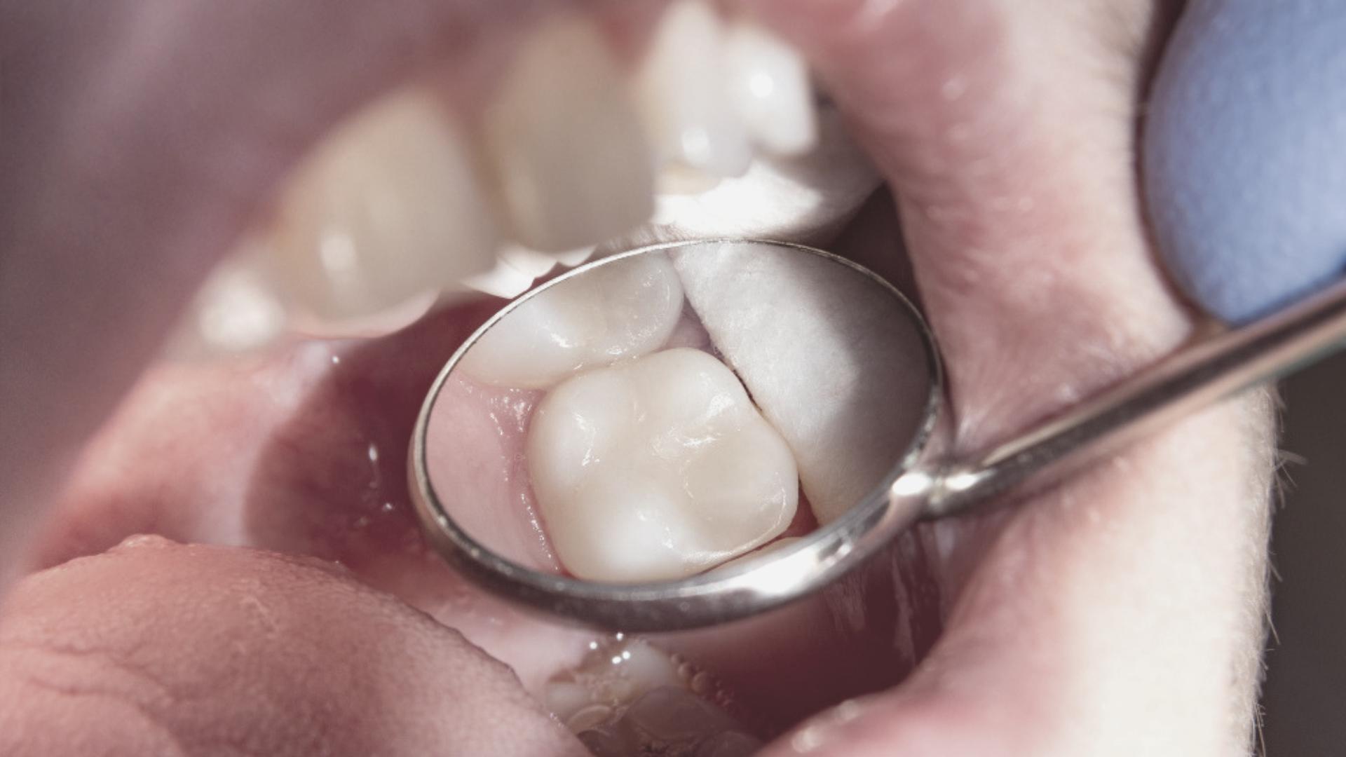 Todo sobre la ortodoncia lingual - PCM Clínica Dental en Córdoba