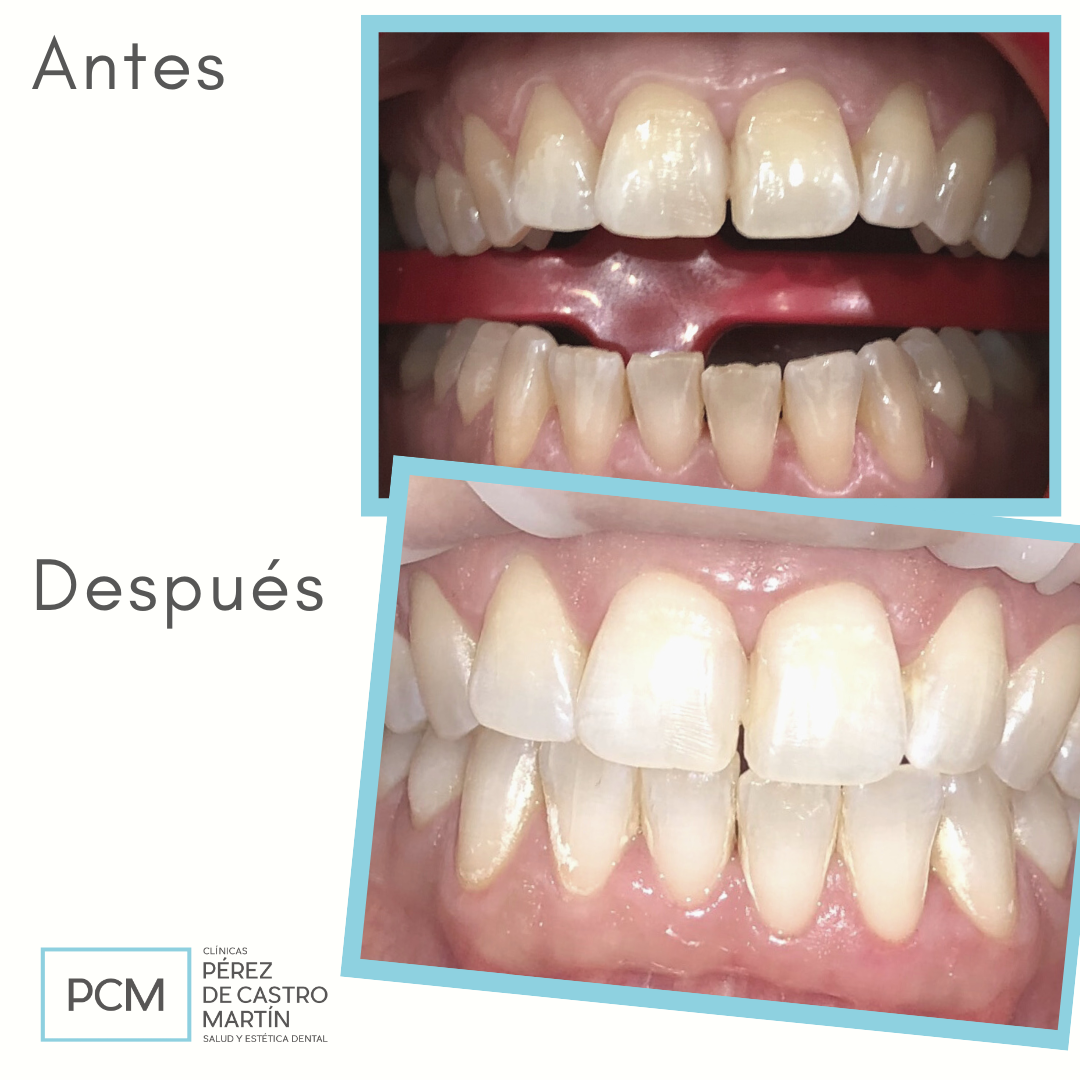 Resultado de blanqueamiento dental en Córdoba - Clínica Dental PCM