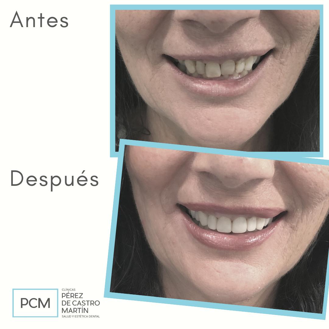 Carillas de disilicato de litio - PCM Clínica Dental en Córdoba