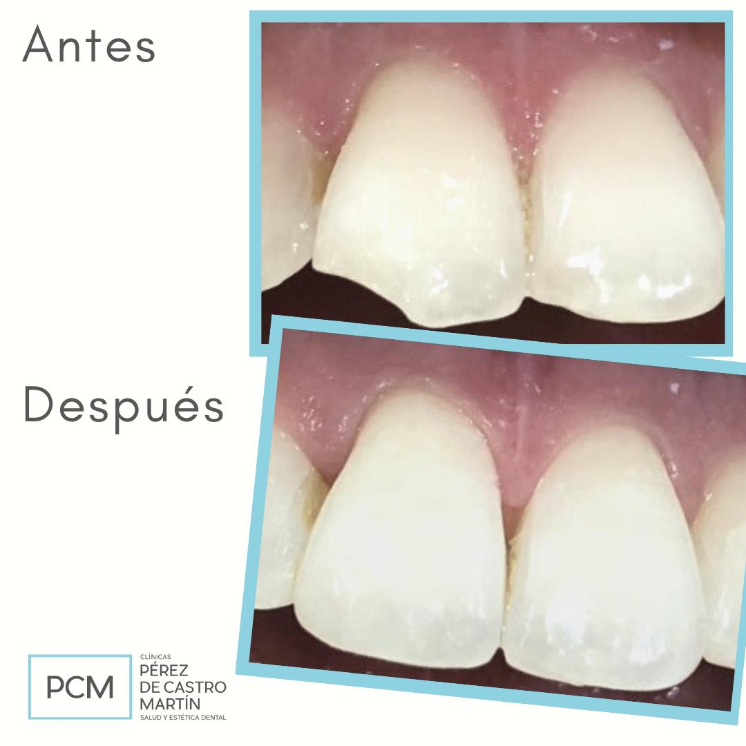 Fractura de diente - PCM Clínica Dental en Córdoba