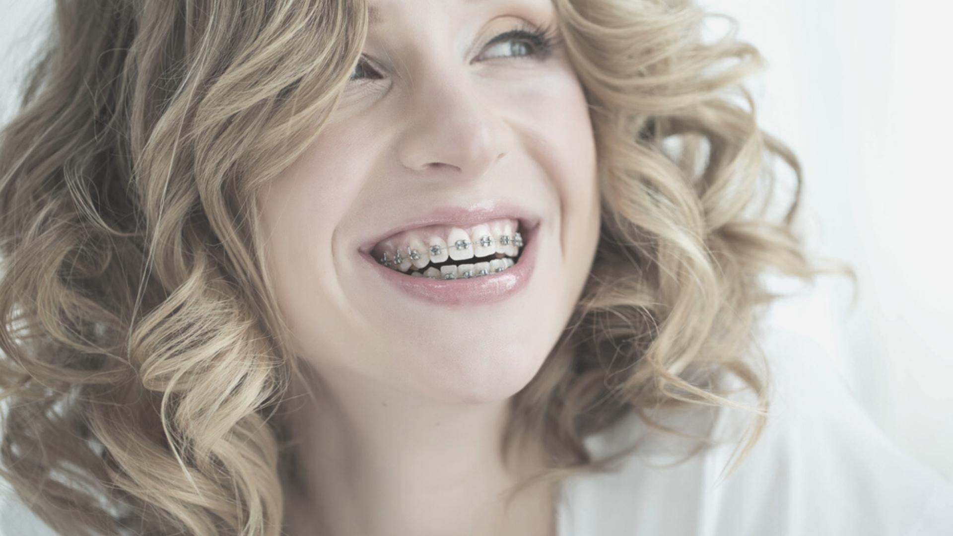 Cómo limpiar tu ortodoncia