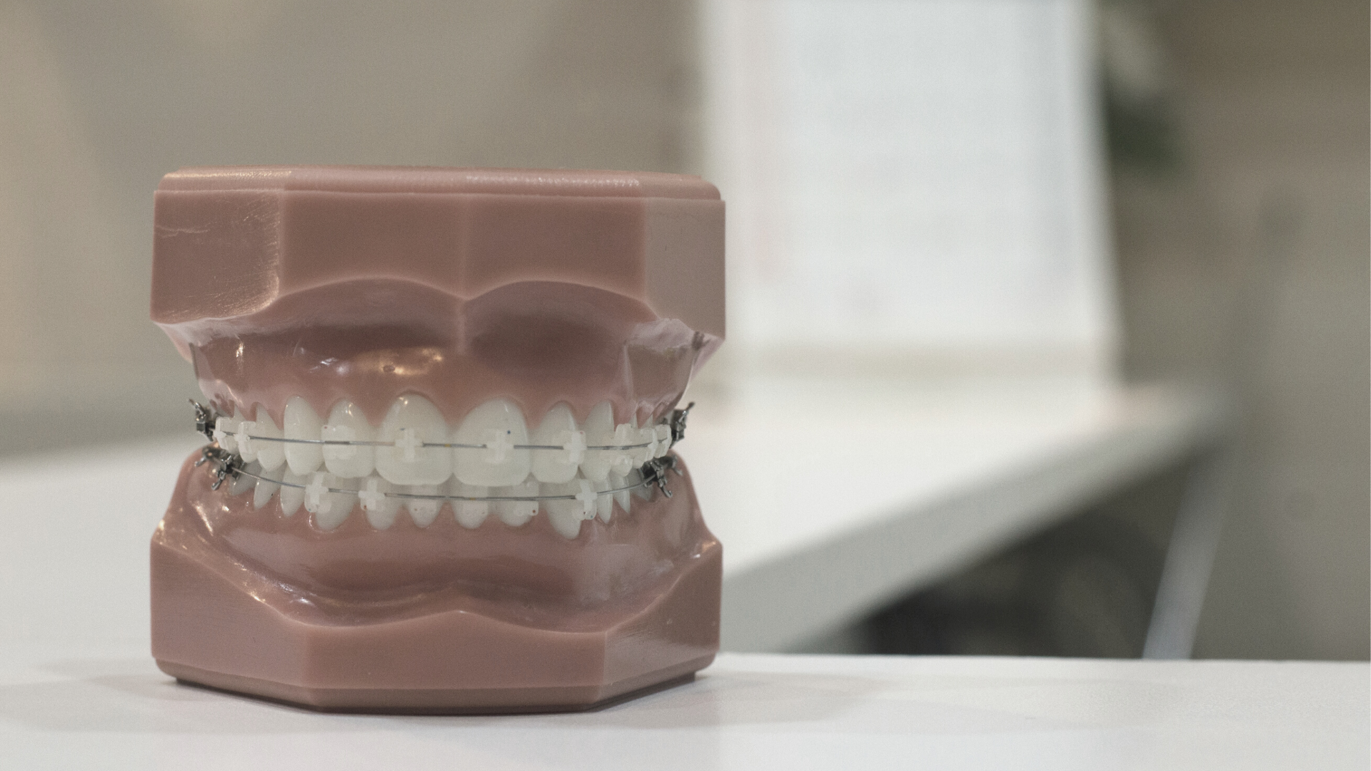 Problemas con la ortodoncia durante el confinamiento