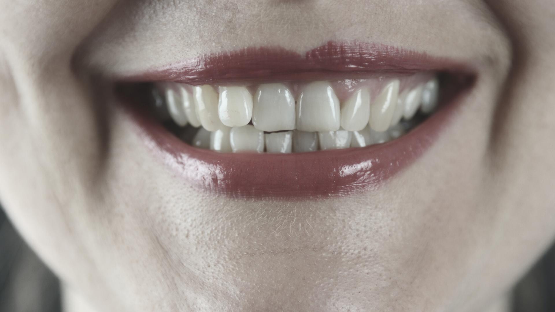 Haz que tu blanqueamiento dental dure más tiempo