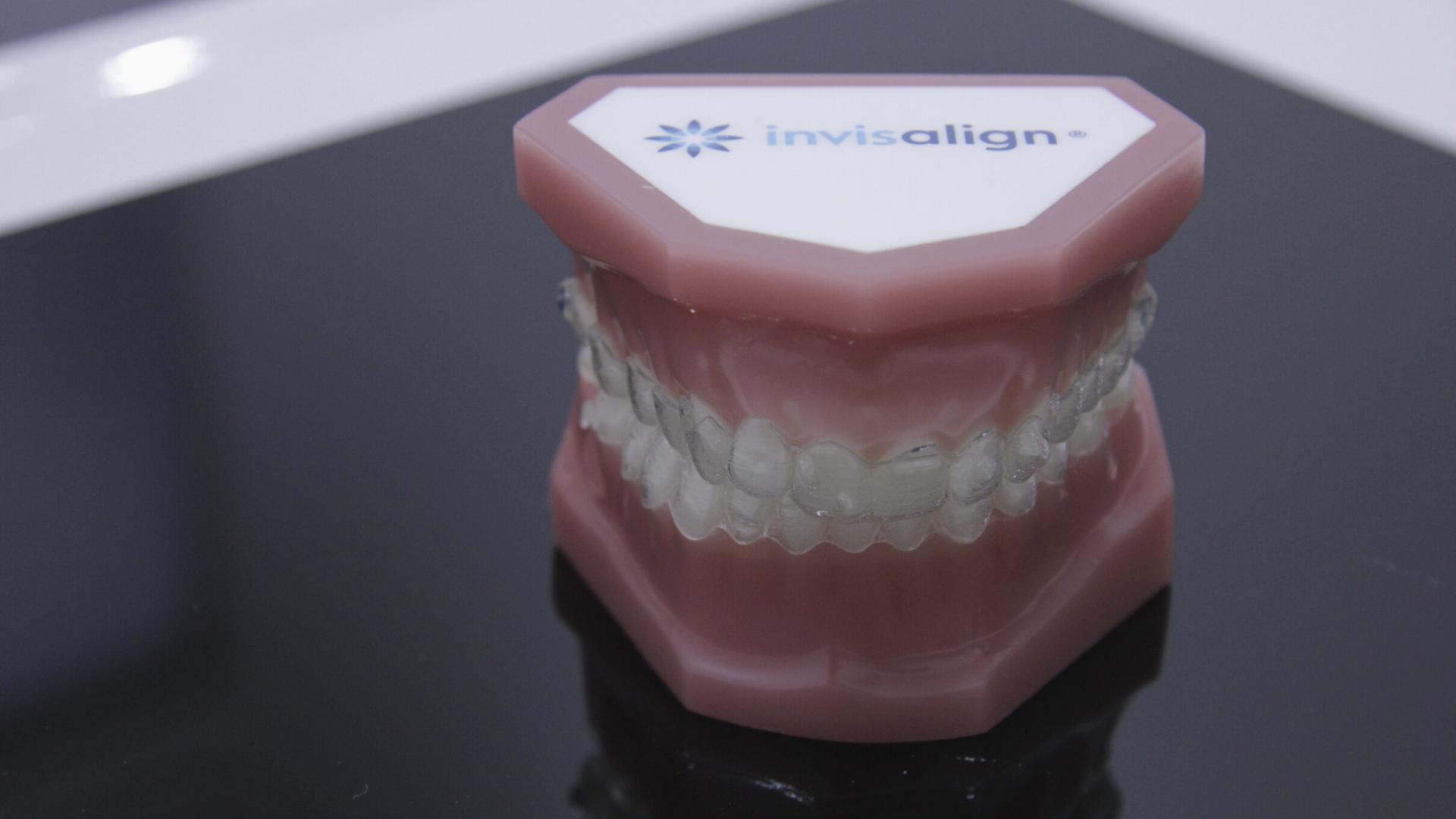 Cuál es el mejor tipo de ortodoncia