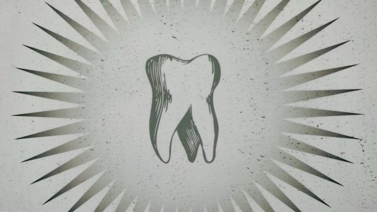 ¿Qué hacer si se me cae un diente?