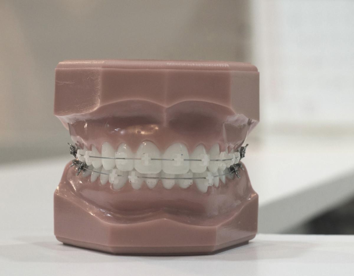 Ortodoncia en Córdoba