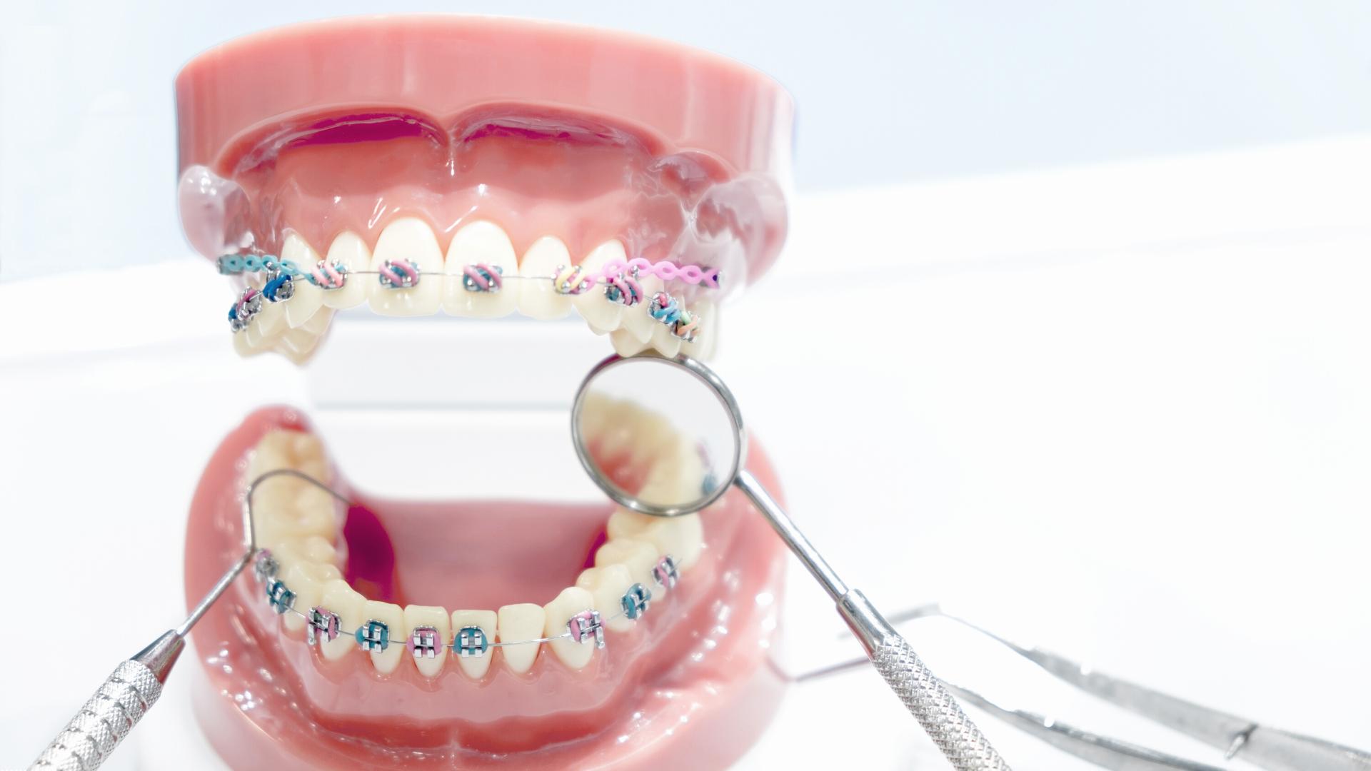 Diferencia entre odontólogo y ortodoncista