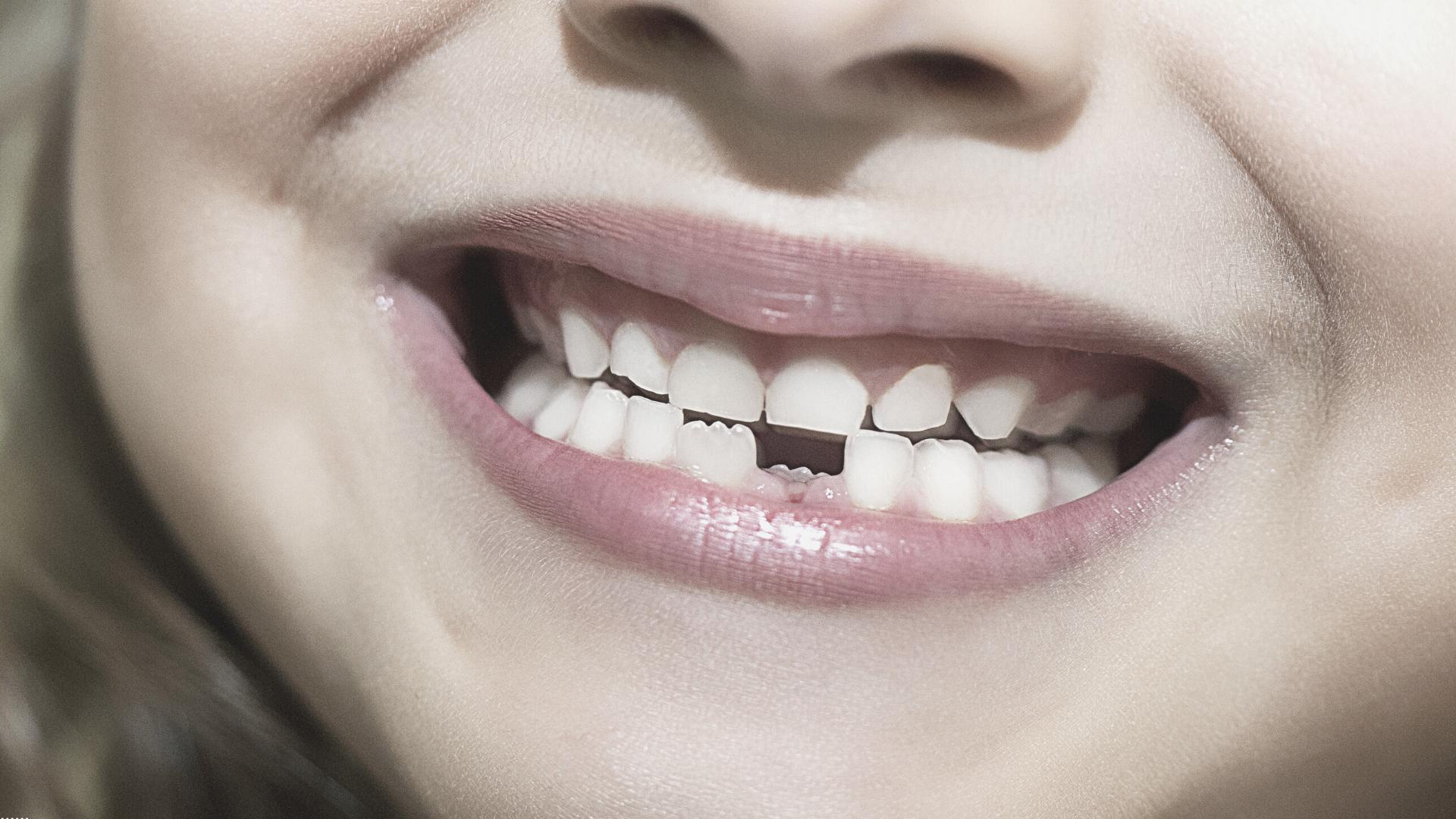 Qué es y cómo tratar la agenesia dental