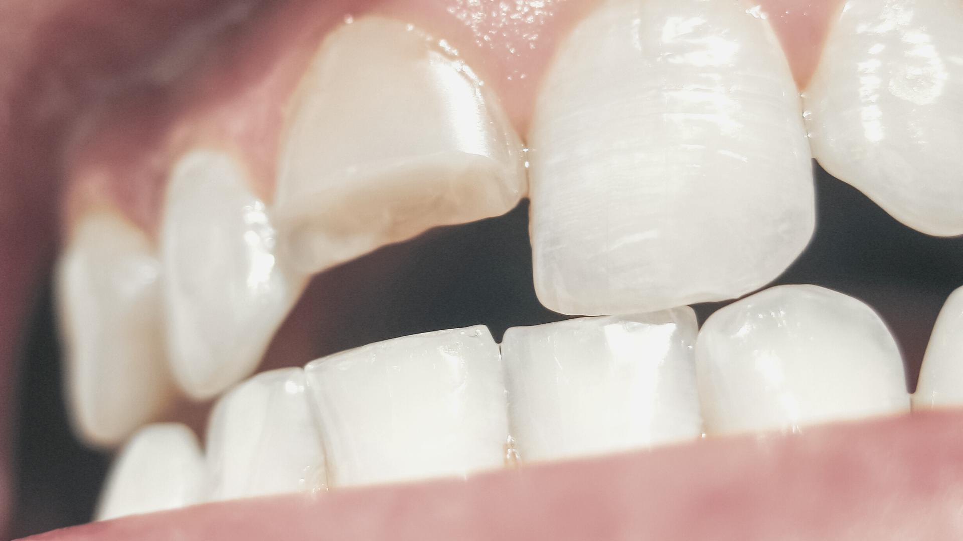 Fractura dental: qué es, tipos y cómo tratarla